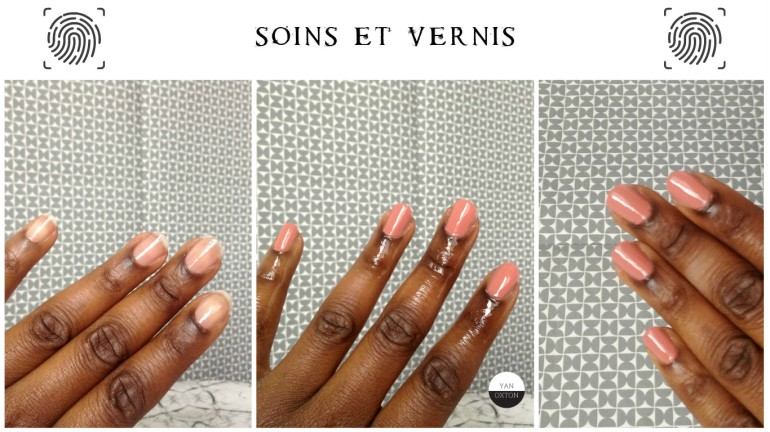 soins ongles abimes