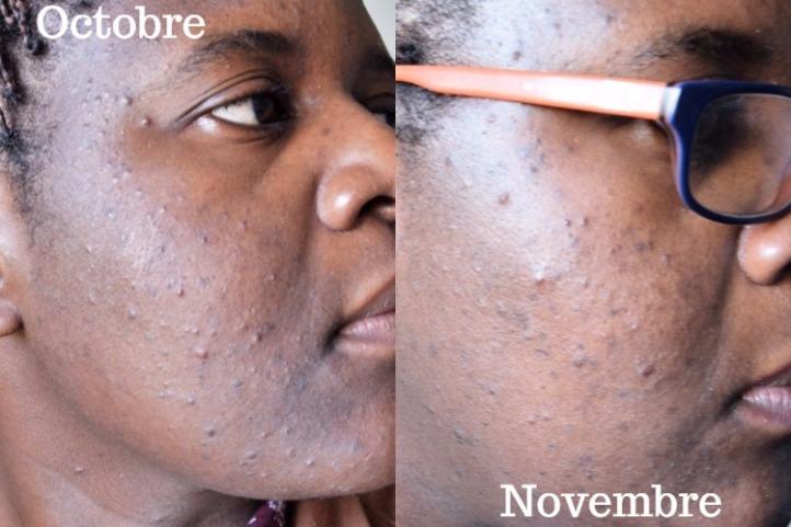 peau-nue-octobre-vs-novembre-droite