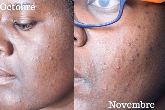 peau-nue-octobre-vs-novembre